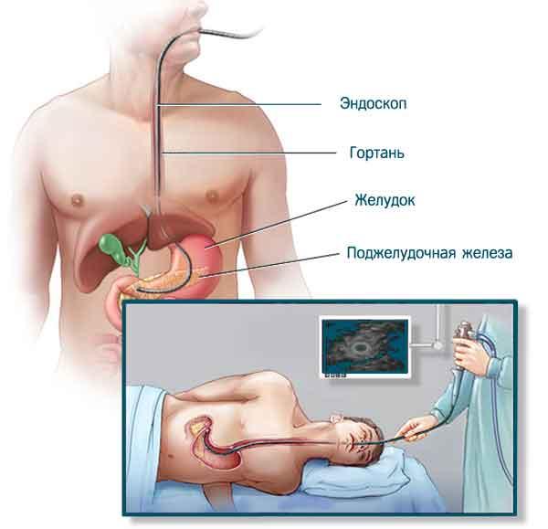 Проведение эндоскопии поджелудочной железы